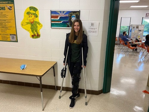 SOPHOMORE MADISON BLANCHARD tore her ACL and meniscus a few months ago playing soccer.  According to Blanchard, she is currently in rehab and is slowly working to regain full use of her left leg.